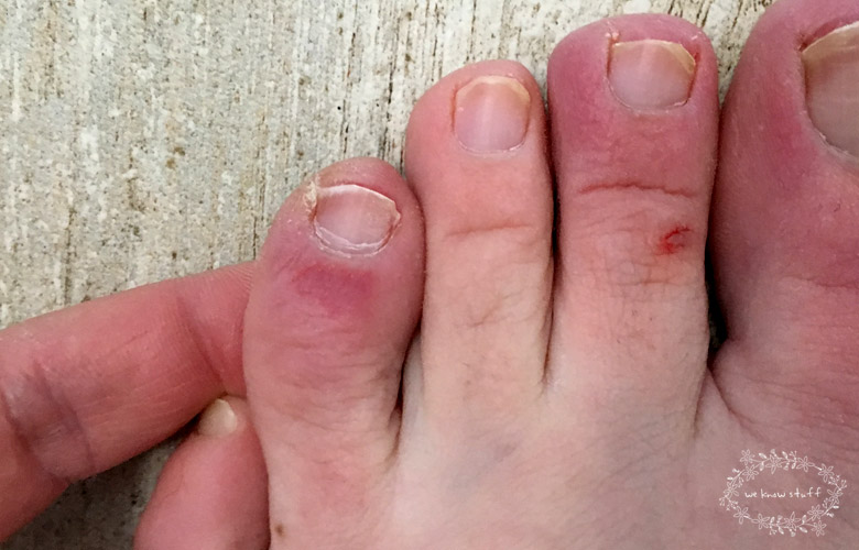 Chilblains toes. Do you get chilblains each winter? Well, I do. At the first sight of snow, angry, itchy, red welts appear on my feet and slowly creep up my toes. I immediately start panicking about how to stop chilblains itching.